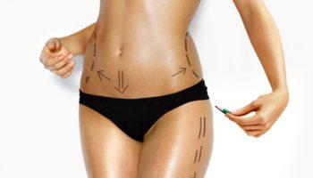 Liposuctie Laser